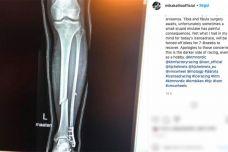 MotoGP – Mika Kallio se fracture le tibia et le péroné – Coup dur pour KTM